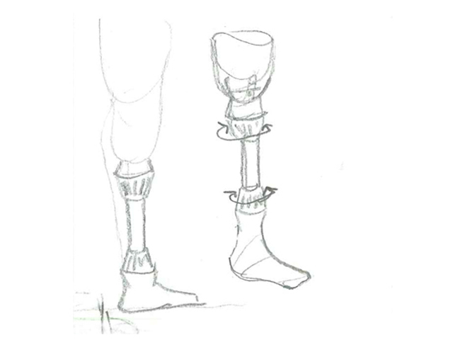 Low Cost Prosthesis sketch